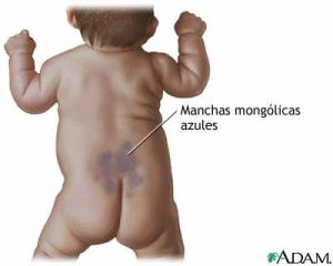 Mancha mongolica: es una mancha de nacimiento de color azulado localizada en la zona baja de la espalda, nalgas, hombros o muslos y que con el tiempo desaparece.